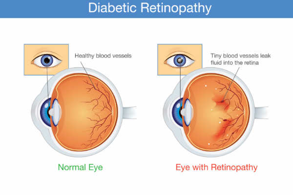 diabetic_retinopathy_graphic