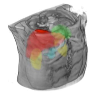 MultiOrganScan