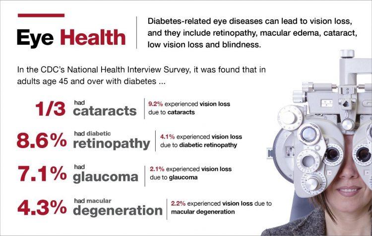 American Diabetes Association Eye Health